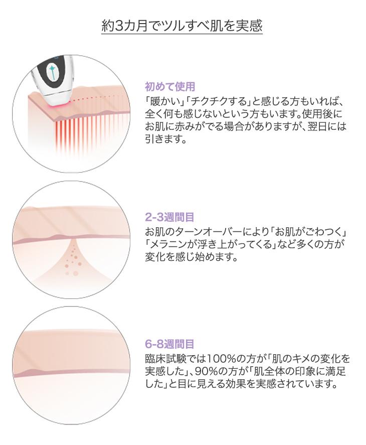 トリア レーザー美顔器の仕組みと効果の解説