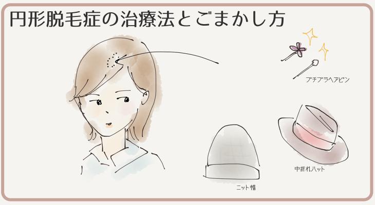 円形脱毛症の治療法とごまかし方