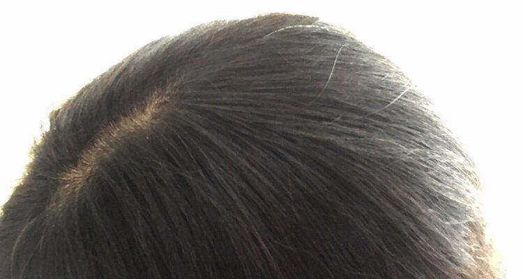 円形脱毛症の症状 40代主婦