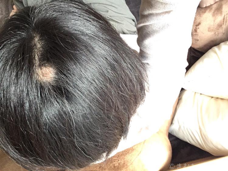 40代女性円形脱毛症の症状
