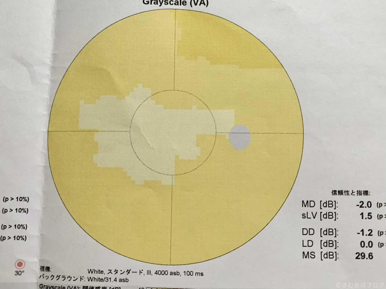 オクトパス600 視野検査結果 40代